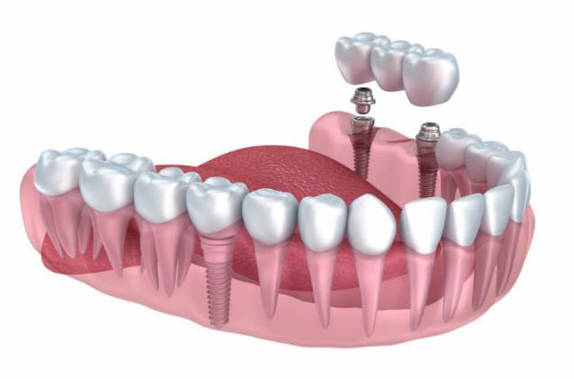 Dental implant bridges