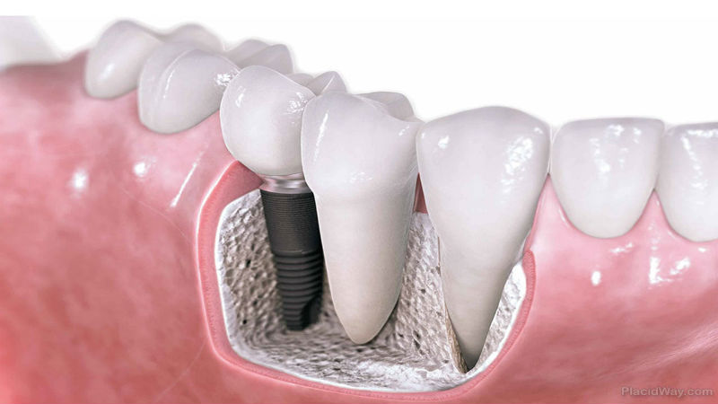 why you should have dental implants in the uk