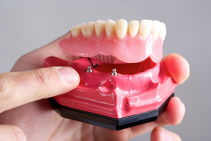 Dental Implant Example