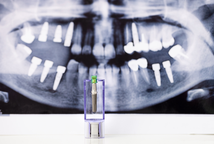 dental implants buckinghamshire