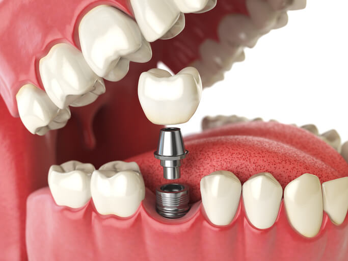 render of dental implant