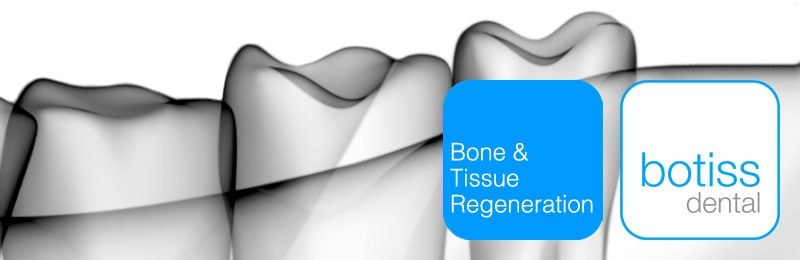 New bone grafting technique developed