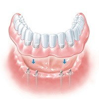 Implant retained overdentures | Dental Implant Solutions