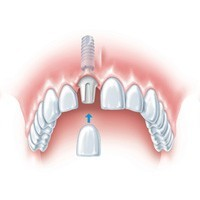 Single Implant supported tooth | Dental Implant Solutions