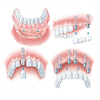 Teeth in a day | Dental Implant Solutions